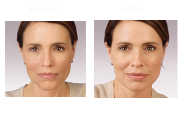 JUVEDERM BEFORE/AFTER